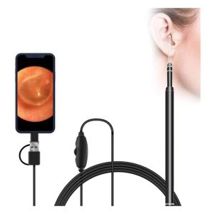 XIONGG 3 In 1 Ear Scope, Ear Wax Removal Tool with 720P HD Waterproof Camera